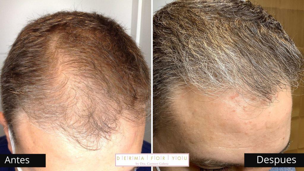 Tricologo - Problemas de pelo - Dermaforyou