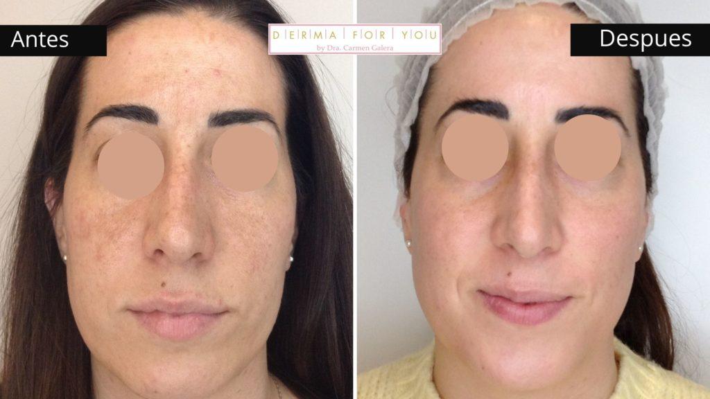 Tratamiento con isotretinoína para acné en mujer adulta- Dermaforyou