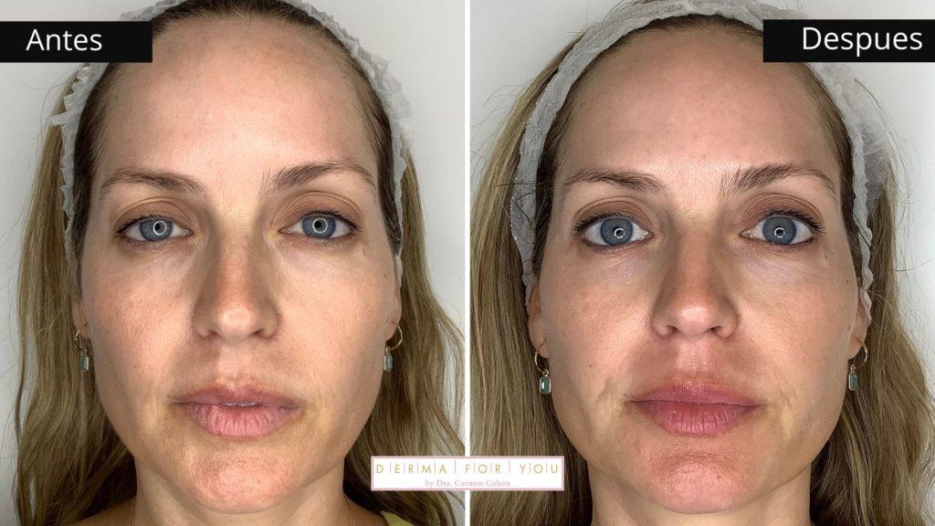 Mi tratamiento antimanchas con Dermalinfusión (frente) - Dermaforyou