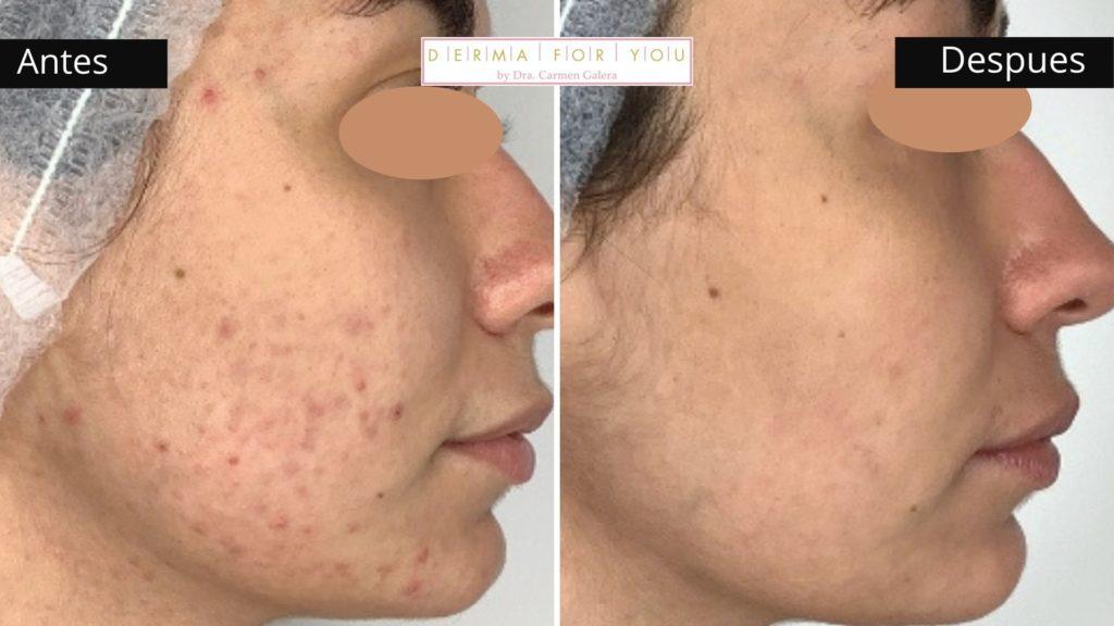 Tratamientos contra el acne en verano - Dermaforyou